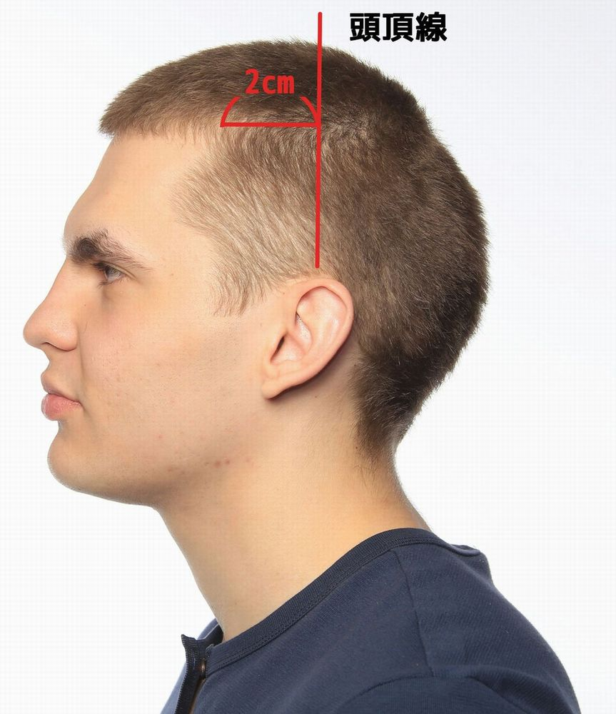 男性型脱毛症の生え際臨界点