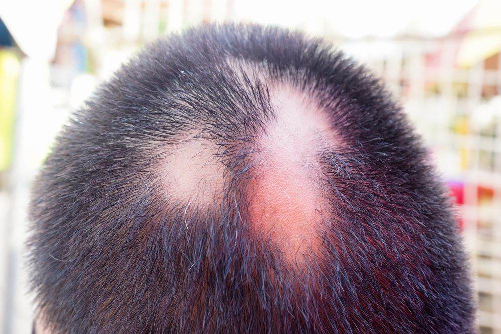 円形脱毛症の症例写真
