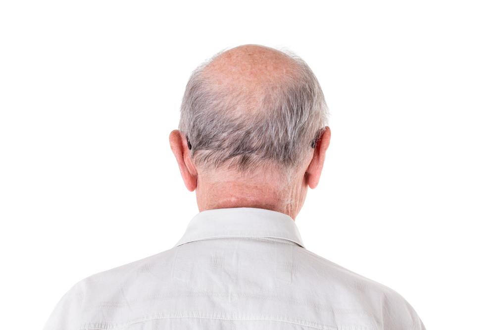 父親が男性型脱毛症