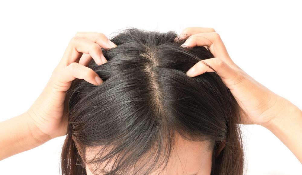 ミノキシジルの副作用、頭皮のかゆみ