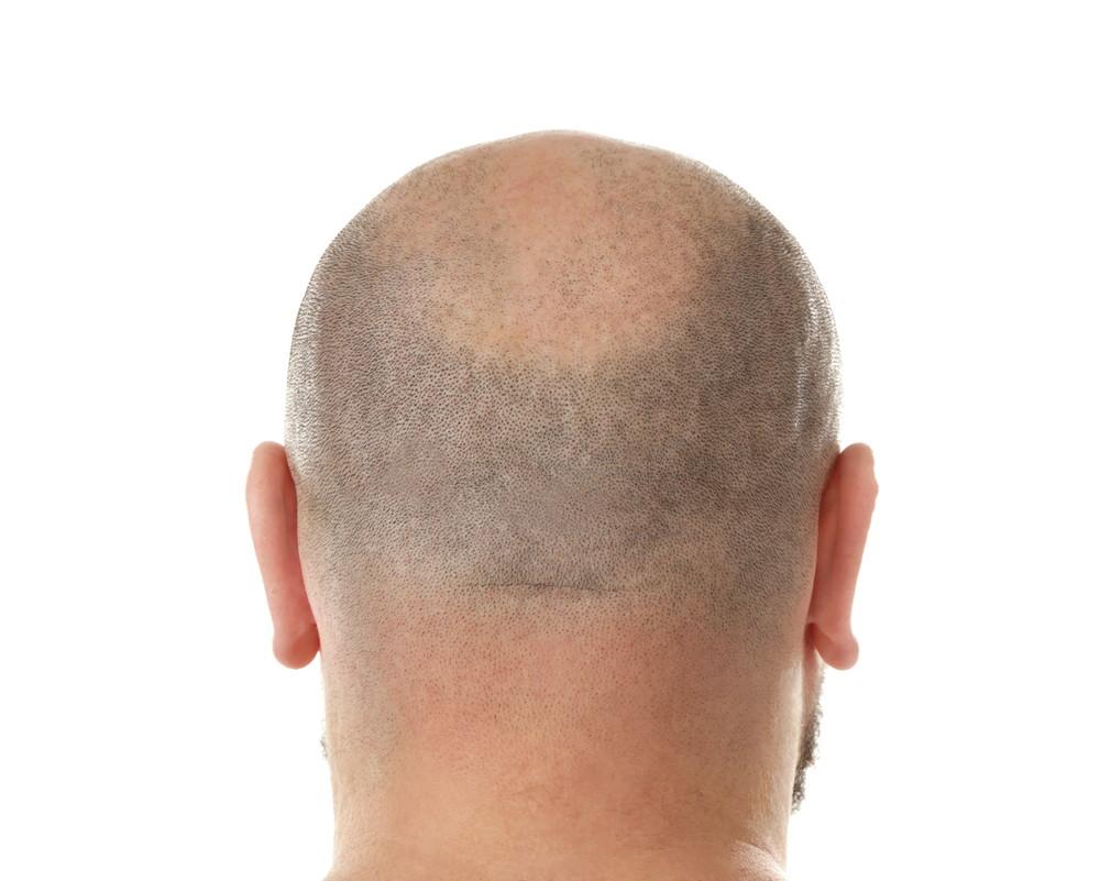頭頂部 薄毛 丸刈り